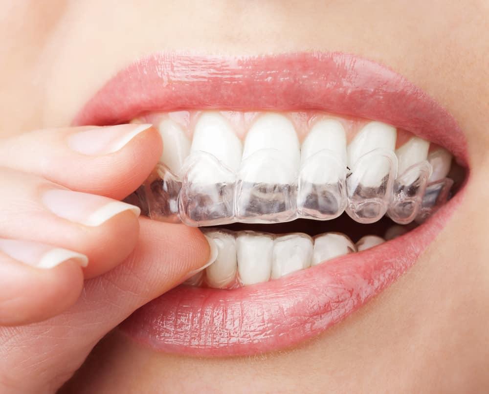 پرینتر دندانسازی و ارتودنسی